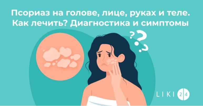 Псориаз на голове, лице, руках и теле. Как лечить? Диагностика и симптомы